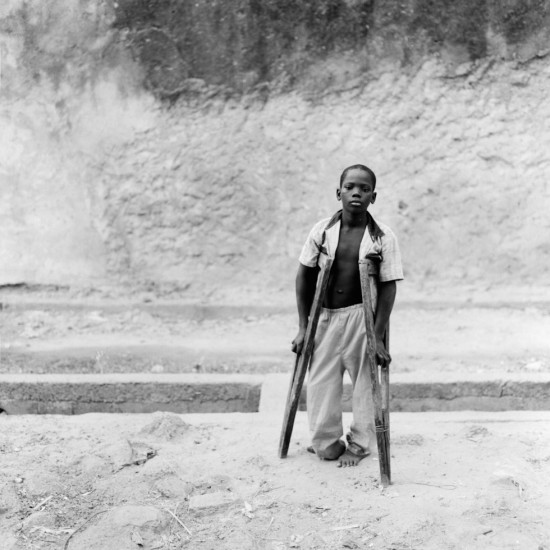 Boy with Crutches, Segou, Mali